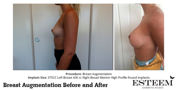 esteem-breast-augmentation-before-and-after-46b