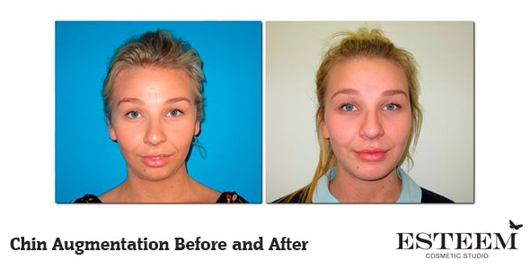 chin-augmentation-before-and-after-1