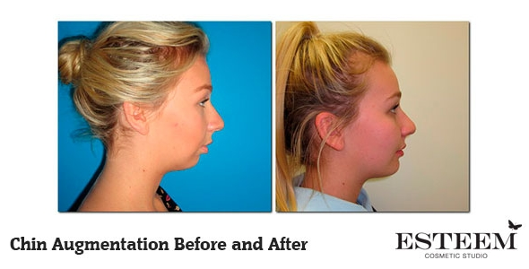 chin-augmentation-before-and-after-2