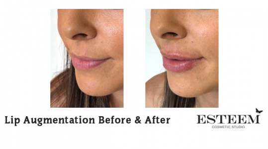 Lip-Augmentation-Before-After-6