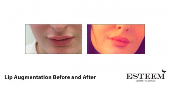 before-and-after-lip-augmentation-1