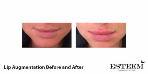 before-and-after-lip-augmentation-2