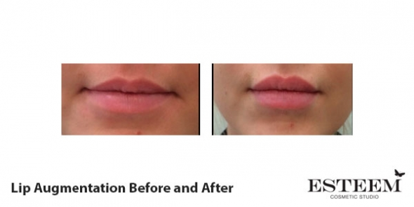 before-and-after-lip-augmentation-3
