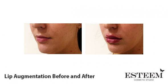 before-and-after-lip-augmentation-4