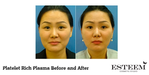 platelet-rich-plasma-before-and-after-2