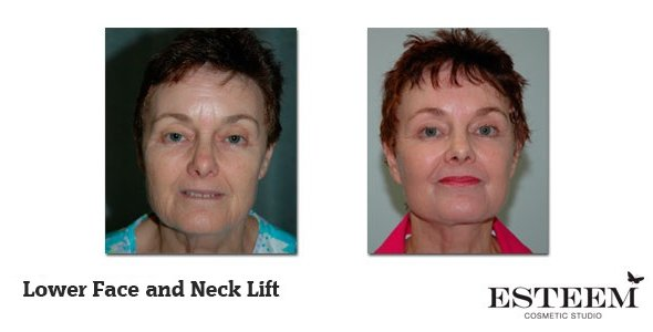 Lower-Face-and-Neck-Lift-before-and-after-1