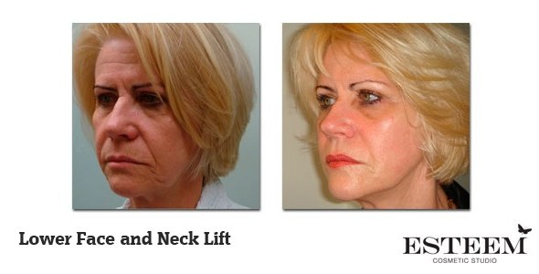 Lower-Face-and-Neck-Lift-before-and-after-2
