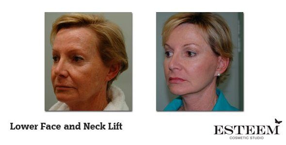 Lower-Face-and-Neck-Lift-before-and-after-3