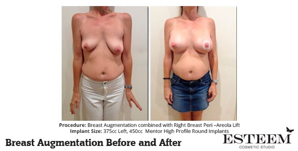 esteem-breast-augmentation-before-and-after-38a-ver2