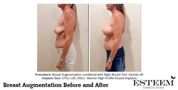 esteem-breast-augmentation-before-and-after-38b-ver2