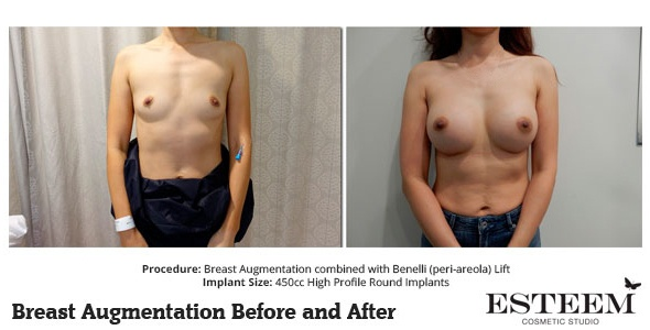 esteem-breast-augmentation-before-and-after-48a-ver2