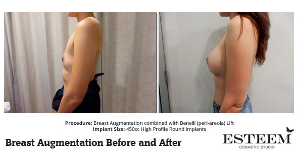esteem-breast-augmentation-before-and-after-48b