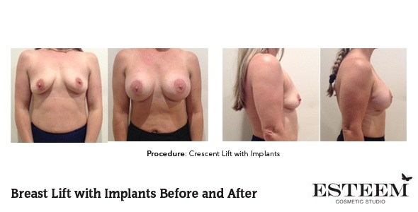 cresc-before-and-after-patient-1