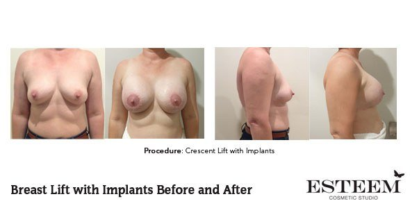 cresc-before-and-after-patient-2