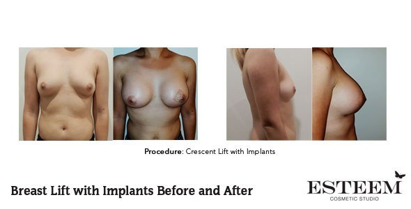 cresc-before-and-after-patient-3