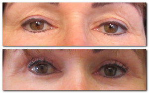 before-and-after-eyelid-surgery-esteem-cosmetic-studio-australia