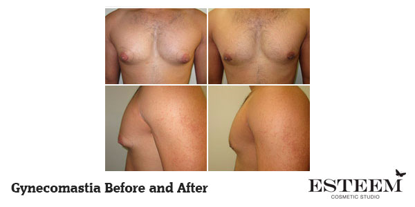 gynecomastia-before-and-after-sydney-canberra