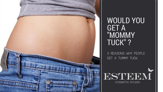 3 Reasons Why People Get a Tummy Tuck