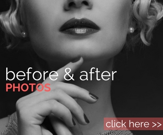 Before & After Photos - ESTEEM