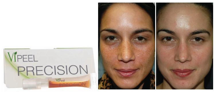 vi-peel-precision-esteem-cosmetic-studio-image1