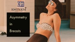 Breast Augmentation: Asymmetry in Breasts