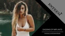 Breast Augmentation: Sagging of Implants