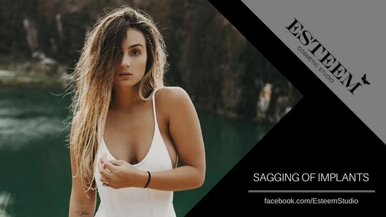 Esteem Cosmetic Studio Breast Implants Sagging