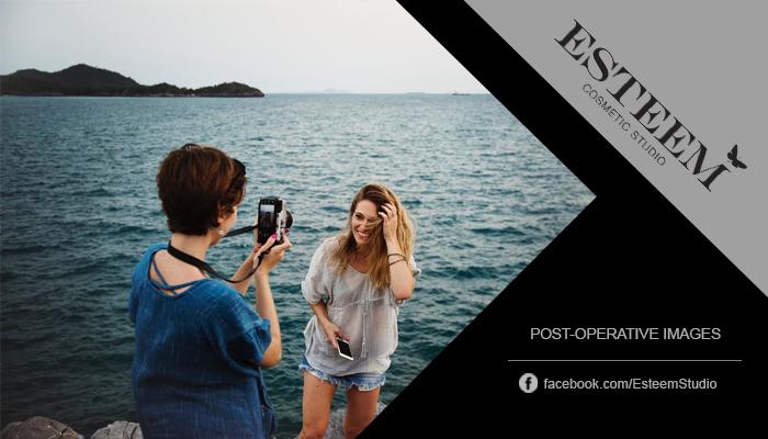 esteem-cosmetic-studio-breast-augmentation-surgery-post-op-images