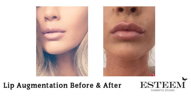 Lip Augmentation Before & After - 1
