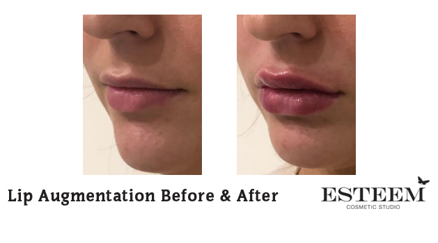 Lip Augmentation Before & After - 2