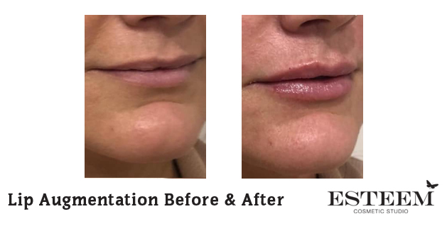 Lip Augmentation Before & After - 3