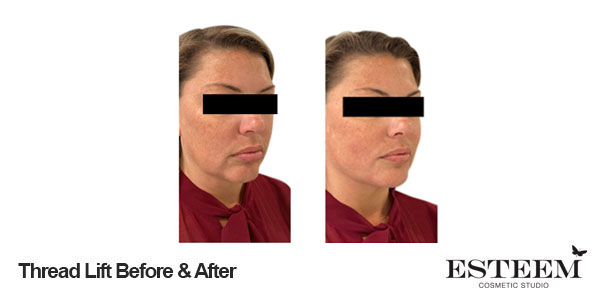 thread-lift-before-and-after-1-1
