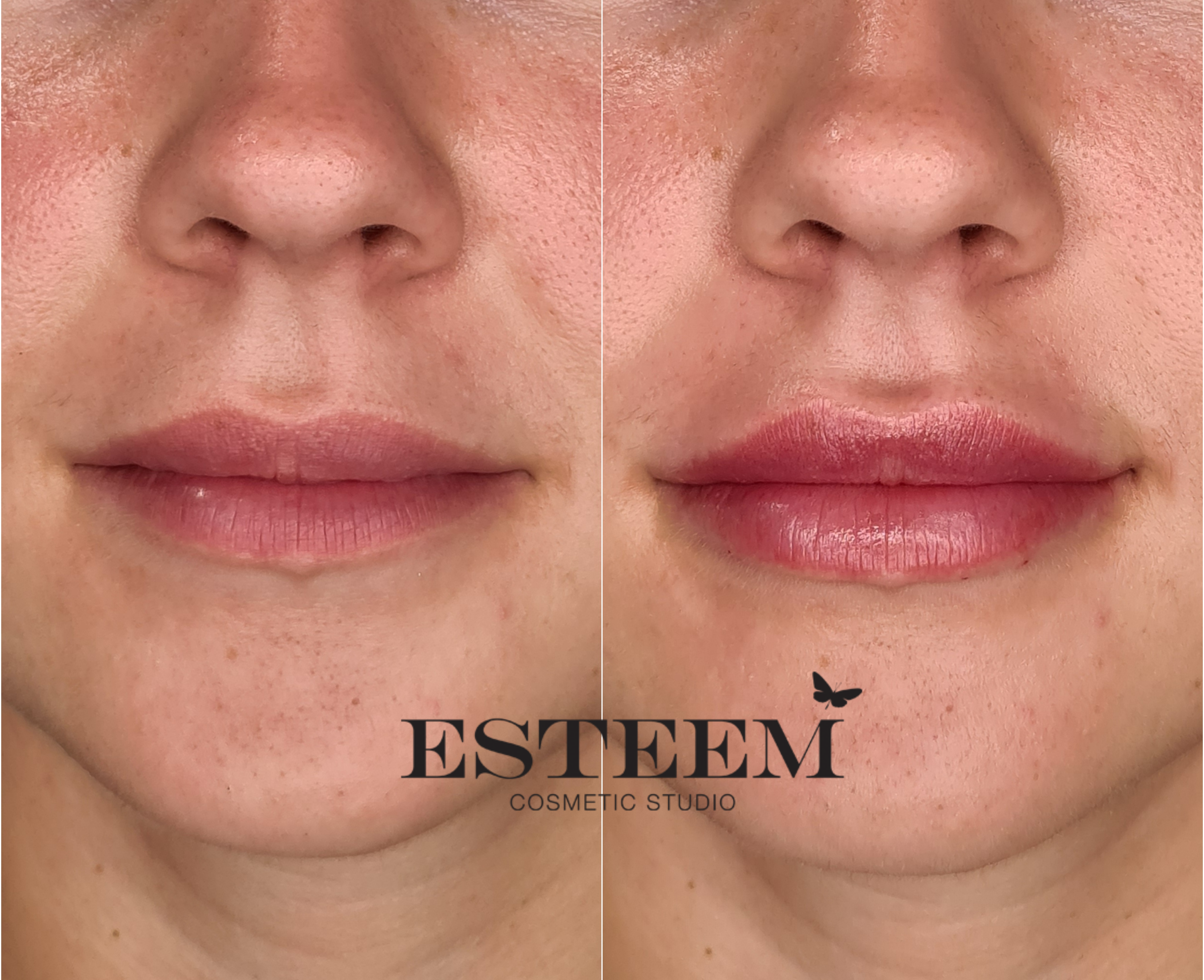 Lip Augmentation New Before & After - 1