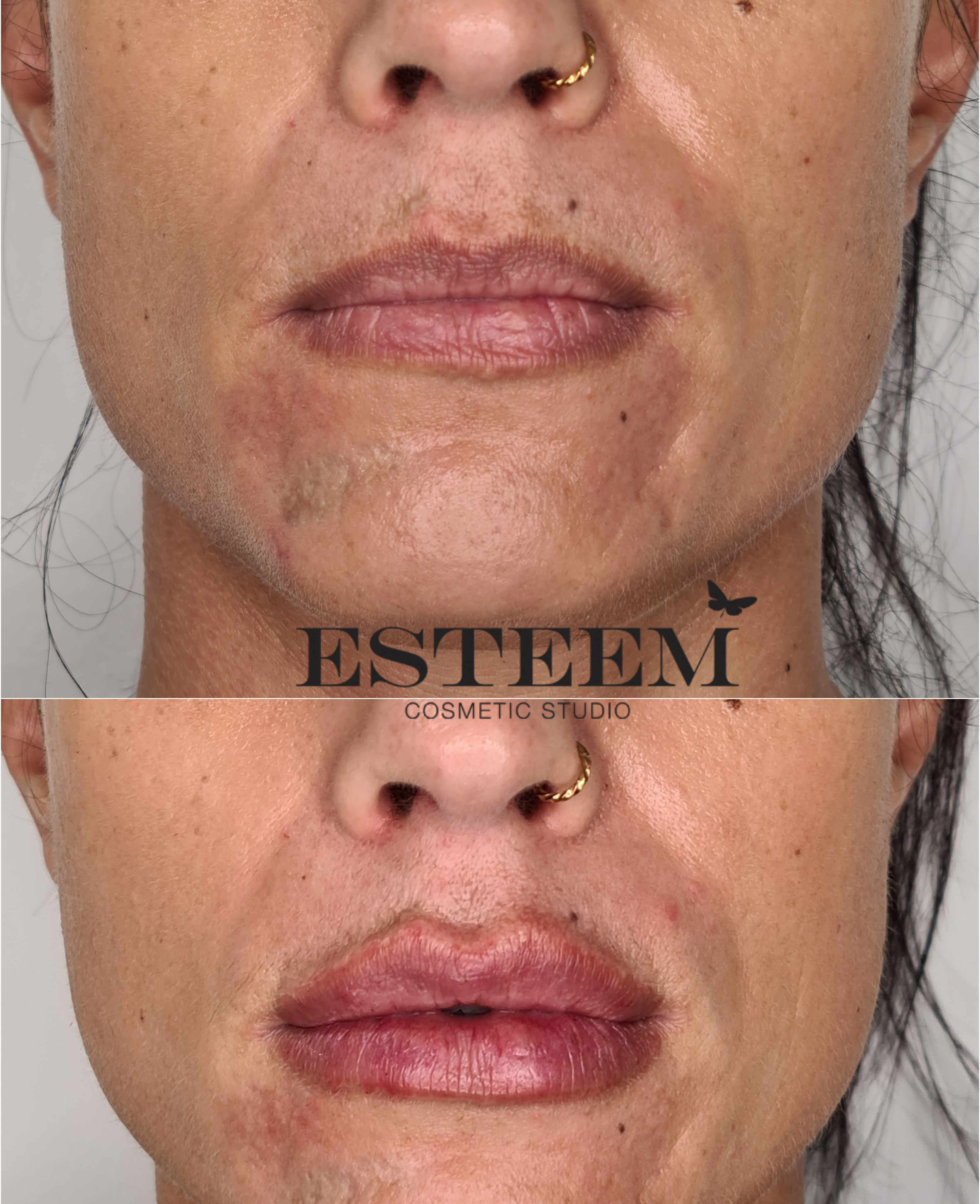 Lip Augmentation New Before & After - 3