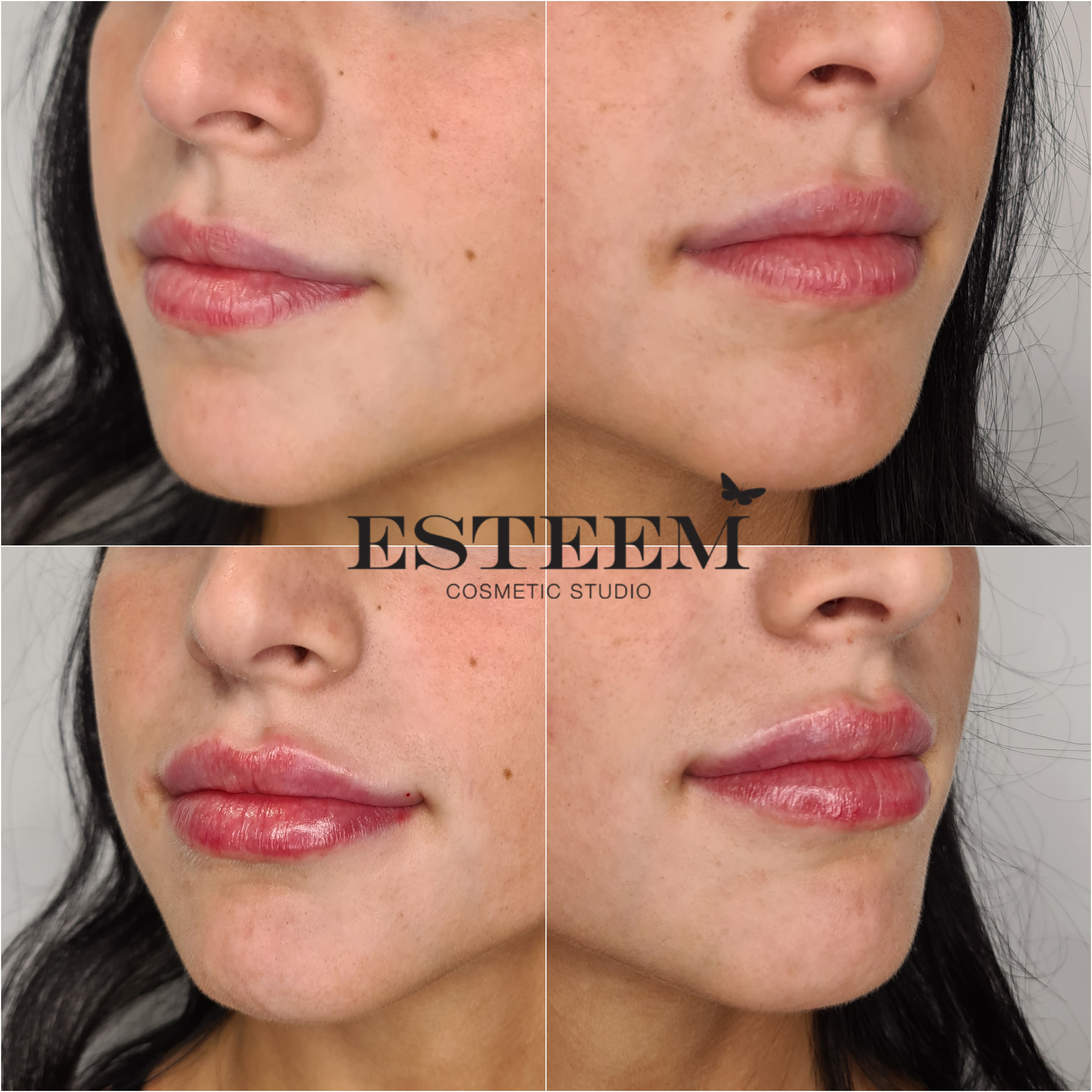 Lip Augmentation New Before & After - 4