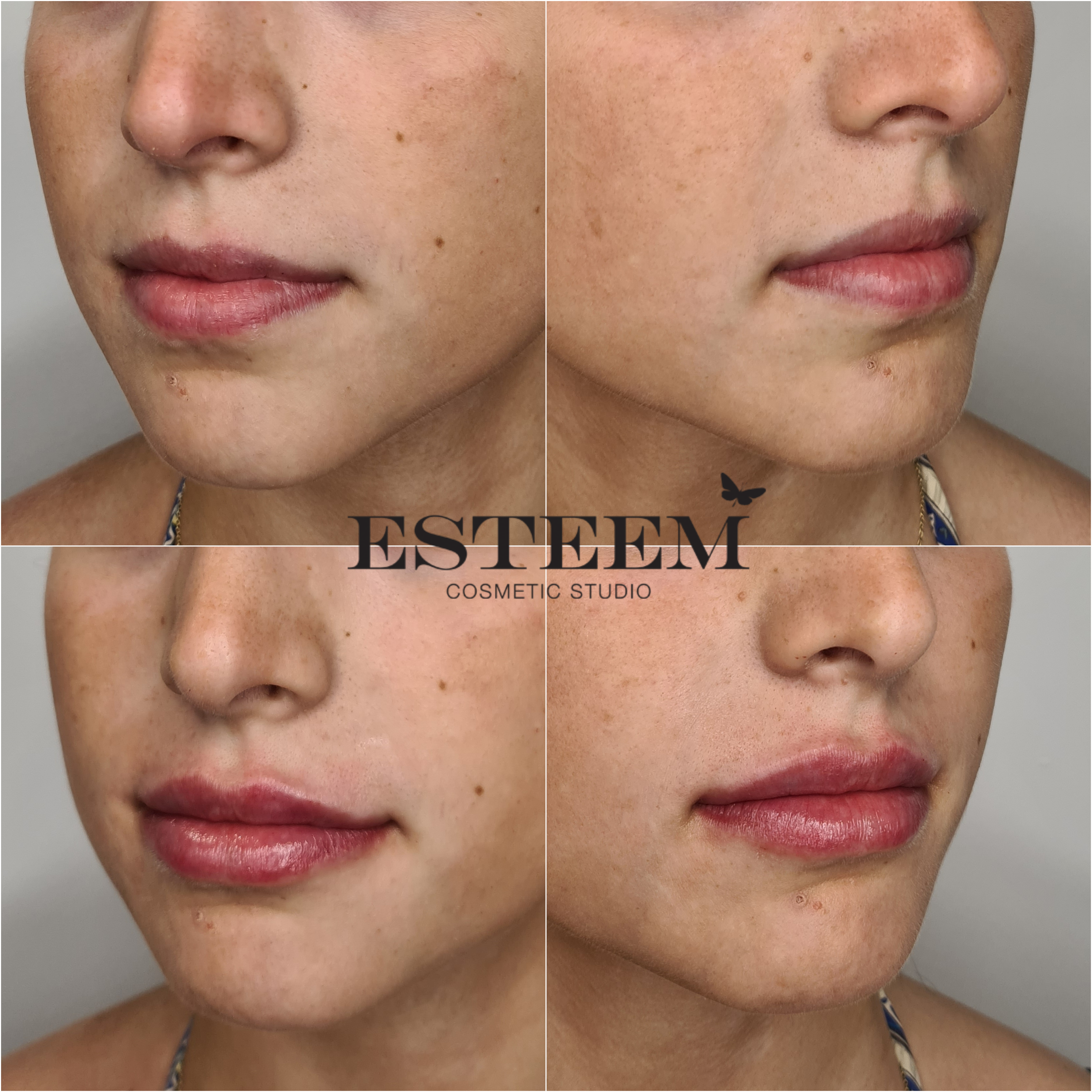 Lip Augmentation New Before & After - 5